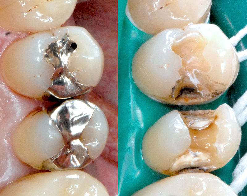 銀歯のままのデメリット